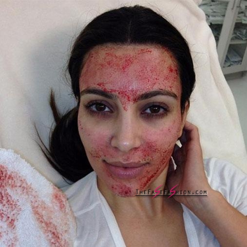 """Kim underwent the infamous vampire facial saying """"Oh my God. I will never get a facelift if it feels like that"""". Photo: Instagram/kimkardashian"""