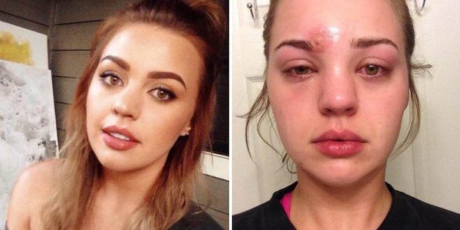 Woman's horrific skin infection is motivation to keep makeup brushes clean
