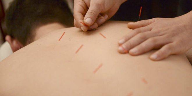 Dry Needling: Benefits, comparison, side-effects, and precautions