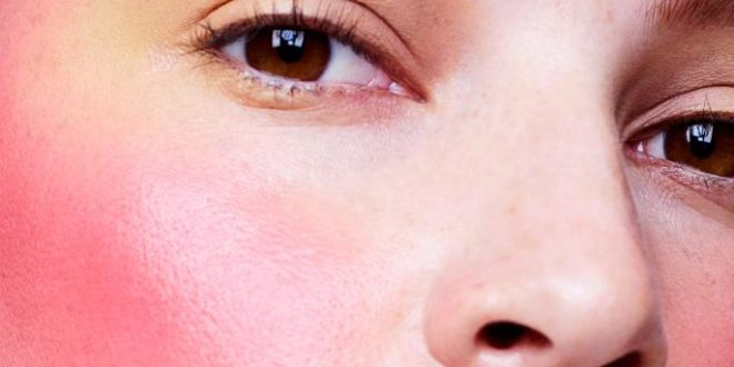 Guide to Rosacea – How to Treat and Live With The Condition